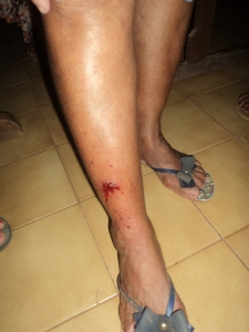 Corte na perna de participante da procissão.