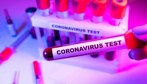 exame-coronavirus-covid19-teste-0320-140-165e